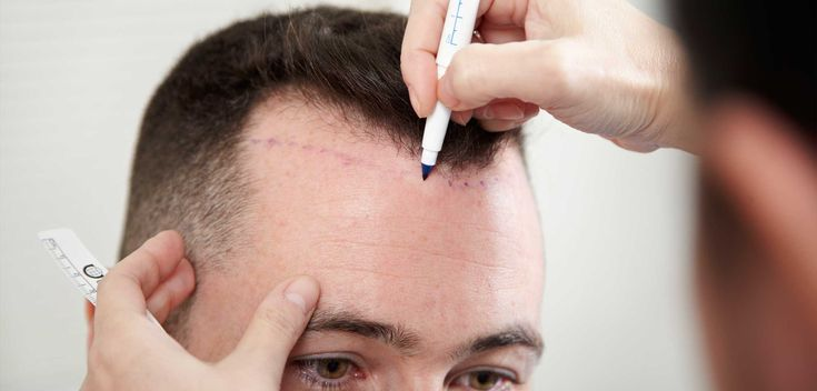 Considering a Hair Transplant? What should be considered Before and how will After Results Look Like?
