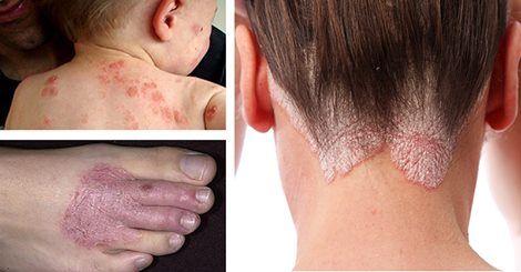 Gyógyíthatatlannak mondott bőrbetegségekre hatékony háziszerek! Igen, működnek, szteroid helyett!
