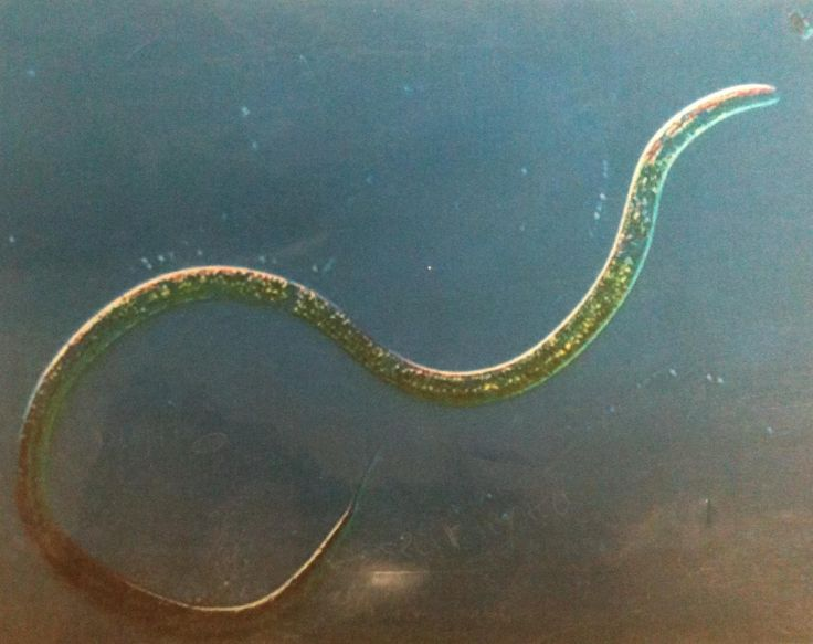 11 best images about Phylum Nematoda on Pinterest | Fresh water ...