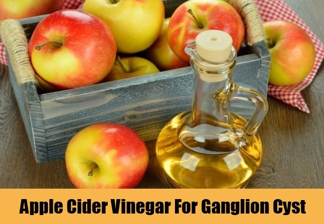 Apple Cider Vinegar For Ganglion Cyst
