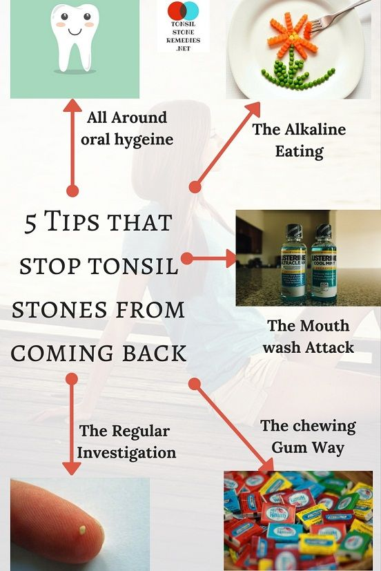5 Tips that stop tonsil stones from coming back.  The perfect way to prevent your recurrent tonsil stones.