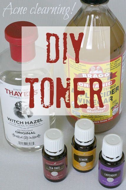 This DIY toner clears acne using witch hazel, apple cider vinegar and essential oils. It works and is so easy to make!