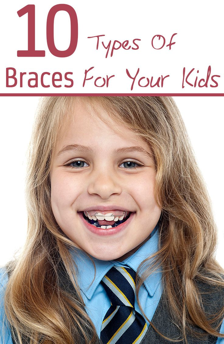 Worried about your kid's imperfect teeth? Don't fret if your child's teeth look less than perfect. Here are 10 different types of teeth braces for your kid.