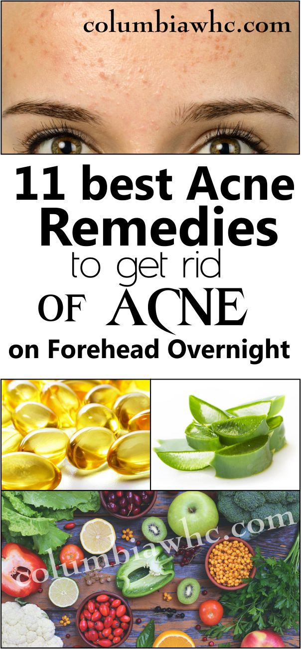 how to treat forehead acne
