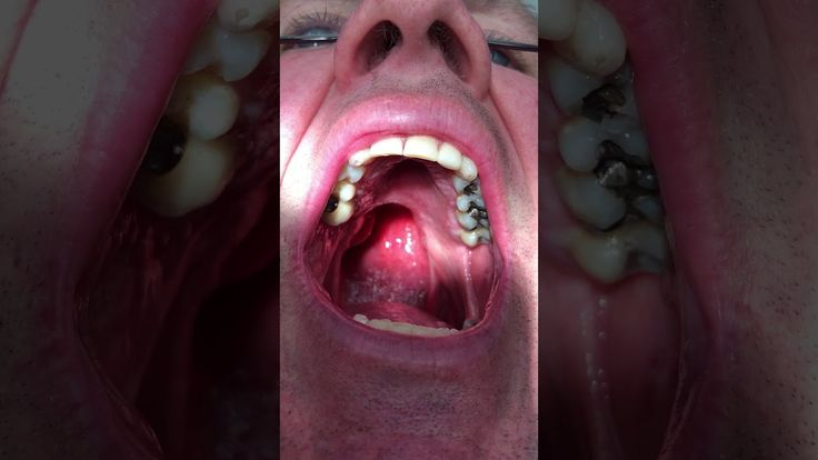 Soft Palate Cancer Denture ( Obturator) Dr. VeyVoda and Michael MIMG 0014 - ✅WATCH VIDEO👉 http://alternativecancer.solutions/soft-palate-cancer-denture-obturator-dr-veyvoda-and-michael-mimg-0014/   	  Dr. VeyVoda and the patient, Michael M, talk about their journey with a prosthesis of cancer of the soft palate (obturator) and how it has changed their life. He is able to speak clearly, go to work, socialize with family and friends and simply live life to the fullest. Mi