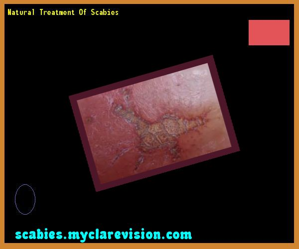 Natural treatment of scabies - Natural Cure for Scabies! You have nothing to lose! Visit Site Now