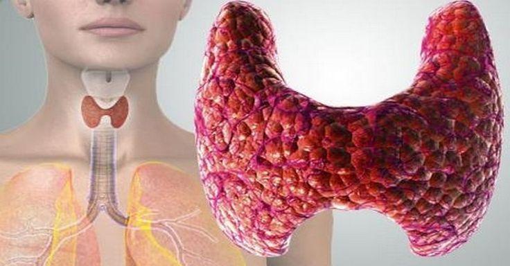 7 vecí, ktoré ničia vašu štítnu žľazu + Recept na liečivý nápoj