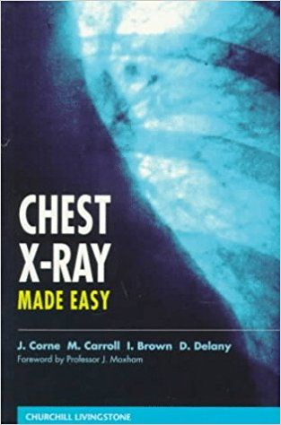 61 best pulmonary books pdf images on pinterest chest x ray made easy 1e 0th edition fandeluxe Gallery