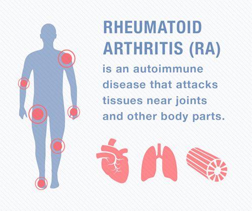 Muscle pain with rheumatoid arthritis