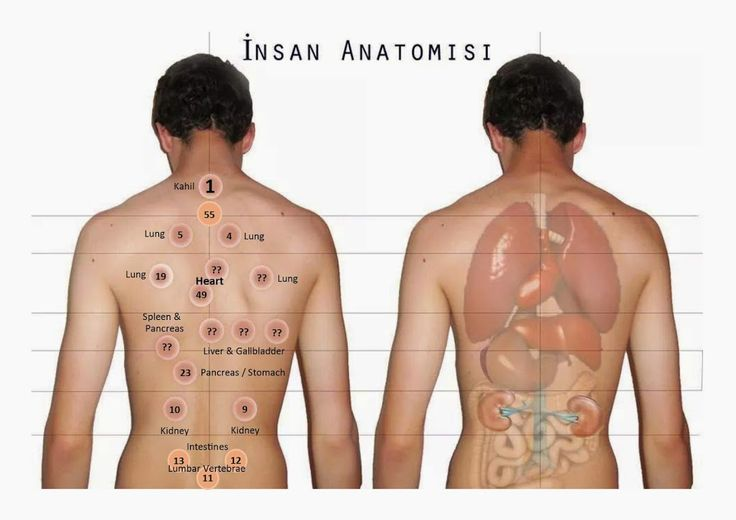 12 Best Images About Hijama Wet Cupping On Pinterest Set