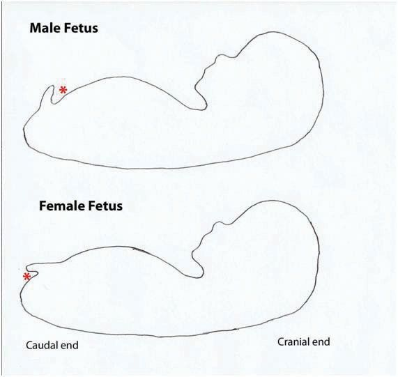 (Most of the time works)     Male Fetus at 12 weeks      Female Fetus at 12 Weeks