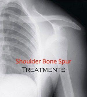 Various Methods Of #BoneSpur In Shoulder #Treatment -   #Bone #BoneDisorders #Spur #ShoulderBoneSpur #BoneSpurTreatment