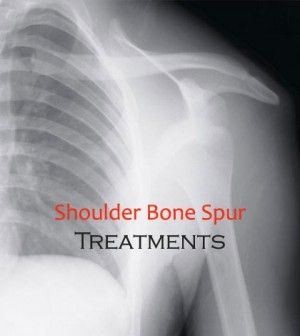 Various Methods Of #BoneSpur In Shoulder #Treatment - #Bone #BoneDisorders #Spur #ShoulderBoneSpur #BoneSpurTreatment