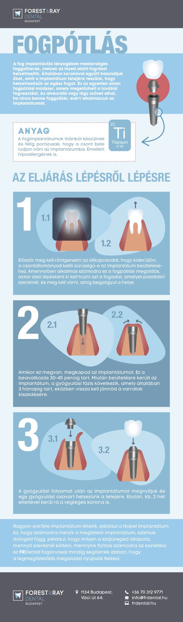 Infografikánkból megtudhatod, mikor van szükség fogászati implantátumra, és milyen lépésekből áll egy fogpótlás. #fogászat #fog #fogorvos #fogpótlás