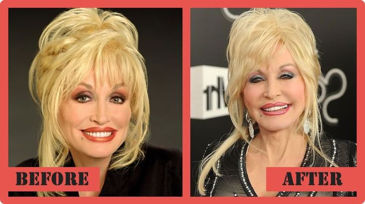Dolly Parton Plastic Surgery Before And After Dolly Parton Plastic Surgery #DollyPartonPlasticSurgery #DollyParton #celebritypost