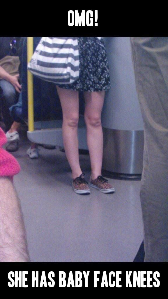 Baby face knees are very creepy.