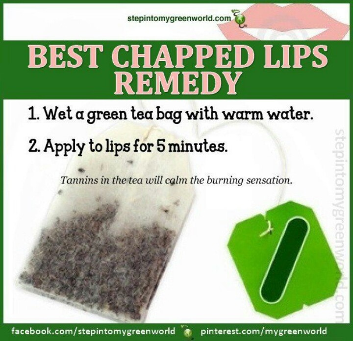 Peeling Lips Natural Remedy