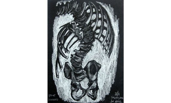 Spine Scoliosis Study April 2014 original drawing of by jonnagl, £50.00