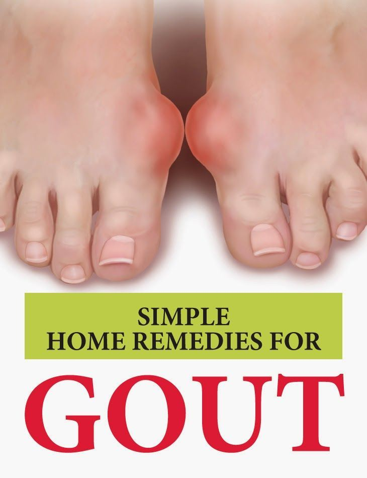 #alternative medicine gout zone