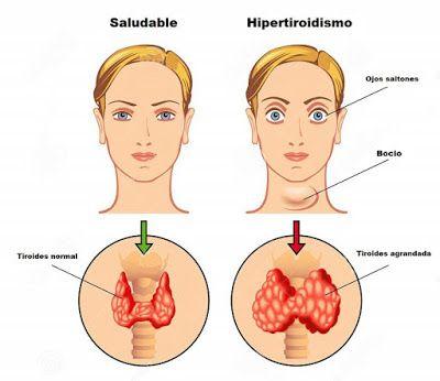 Hipotiroidismo e Hipertiroidismo: Aprende sus diferencias, signos, síntomas desencadenantes y tratamientos. - Medicina mnemotecnias