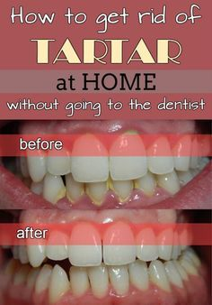 Learn how to get rid of tartar at home without going to the dentist.