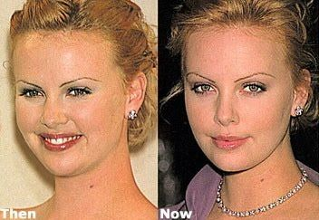 Charlize Theron nose job, face lipo, and just noticed those over-plucked brows, uff