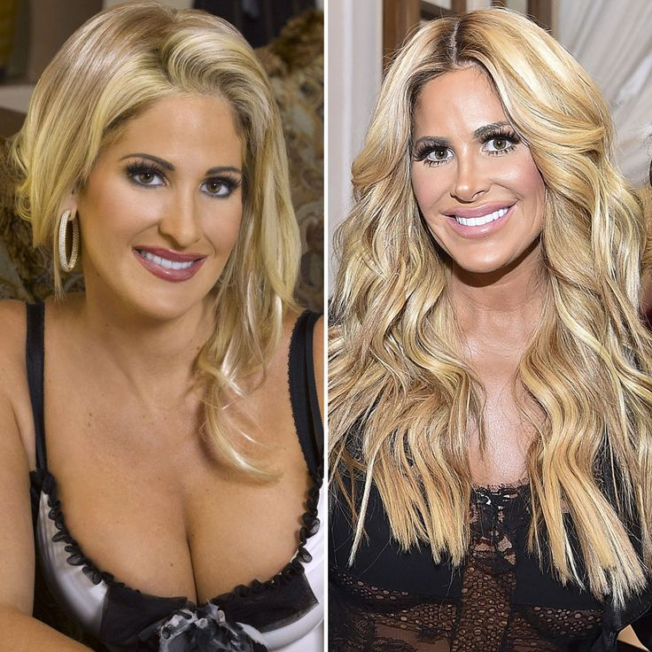 Heidi Montag, Courteney Cox, and More Celebrities Who Completely Changed Their Face Over Time