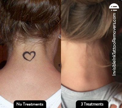 tattoo laser removal before and after #tattooremovalbeforeandafter #TrufadeTattooRemoval