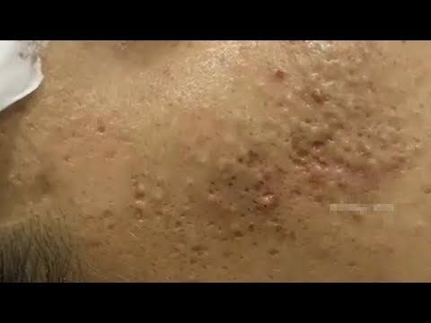 Acne, Blackheads And Pimples Removal Cystic Acne Treatment With Relaxing Music #153 Stubborn Milia Extractions with Dr Pimple Popper … #cysticpimples