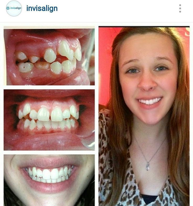 Amazing invisalign by dentalroom our invisalign page
