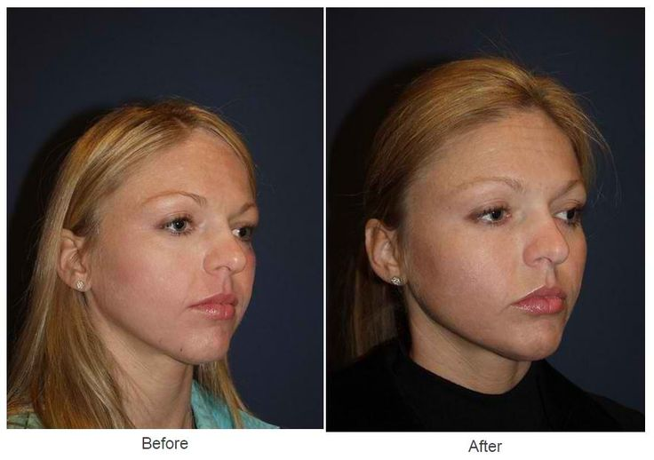 Procedures Performed Facial Implants:  Cheek Implants and Chin Implant Eyelid: Lower Lid Blepharoplasty with SOOF