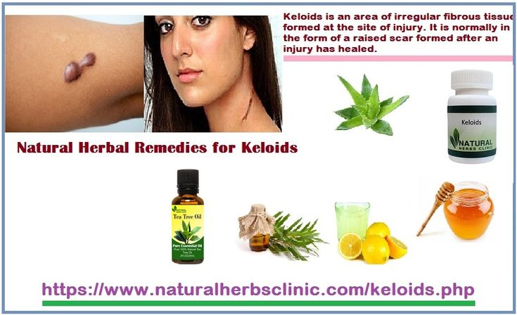 How to Improve Keloid Scars With an All Herbal Treatment