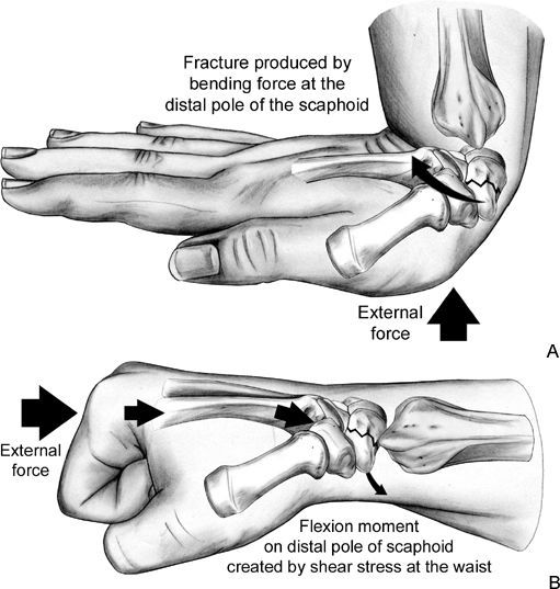 Scaphoid fractures from Hand Surgery 1st edition, great visuals                                                                                                                                                                                 More