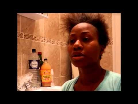 Apple cider Rinse on dry scalp -  CLICK HERE for The No. 1 Itchy Scalp, Dandruff, Dry Flaky Sore Scalp, Scalp Psoriasis Book! #dandruff #scalp #psoriasis Apple Cider Vinegar Rinse for both natural hair and relaxed or texturised hair Ingredients: Braggs Apple Cider vinegar (Available on Amazon or a health store) Bottled/Still water  - #Dandruff