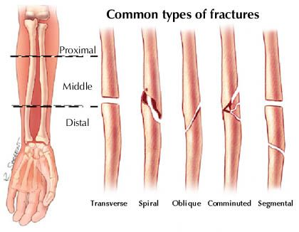 66 best images about fractures on pinterest | rad tech, medicine, Human Body