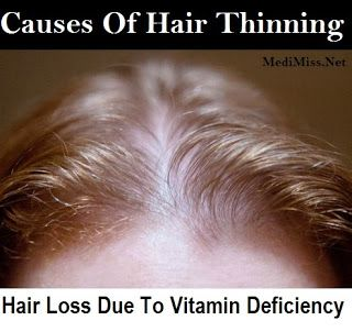 Proven Hair Loss Treatments in Canada