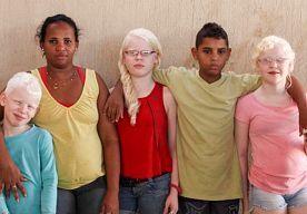 6-Nov-2014 12:04 - 3 ALBINO KIDS VOOR DONKERE VROUW. Een Braziliaanse vrouw met een donkere huidskleur is de trotse moeder van drie albinokinderen. Rosemere Fernanda de Andrade wordt vaak aangezien voor hun kinderjuf, omdat haar kids totaal niet op haar lijken.