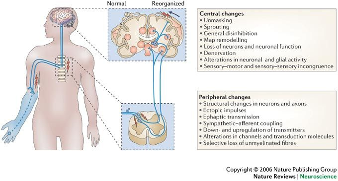 A visual diagram depicting central and peripheral changes when loosing a limb.