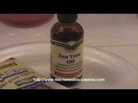 Cómo quitar una espinilla de la noche a la mañana - Remedios caseros