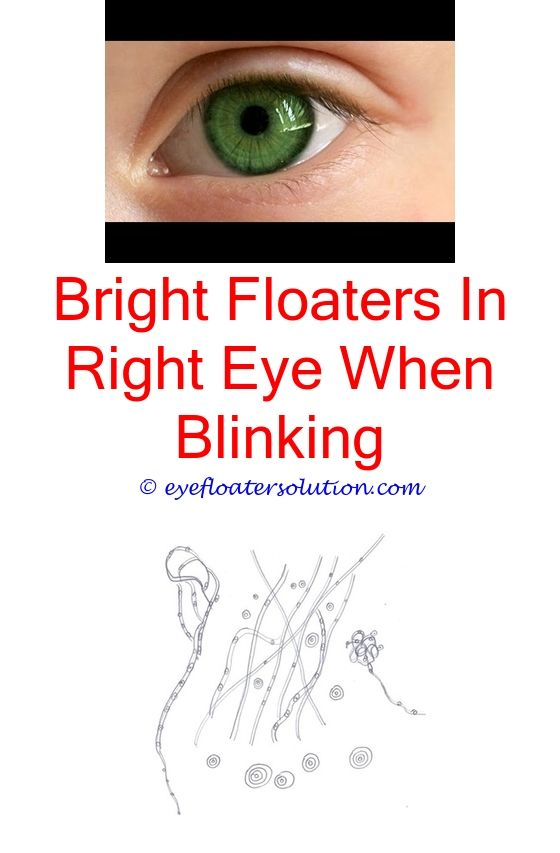 Msm Eye Drops Floaters Flashes Pain Webmd Benign Treatment What Is Causing Eyes Succ