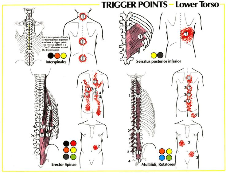 Lower Back Pain | GadiBody.com | Neuromuscular Therapy - Strain Counterstrain Pain Relief - Los Angeles, Santa Monica CA