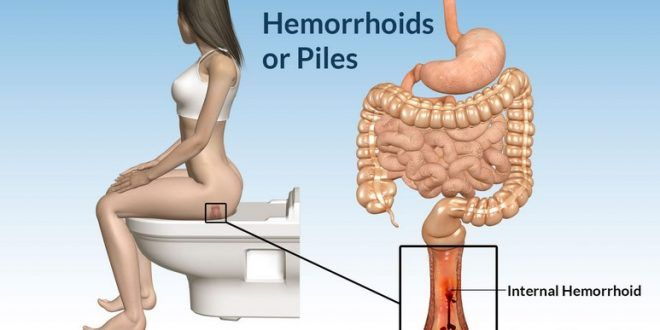 Only One Component Of Your Kitchen Will Cure Hemorrhoids In 24 Hours! Checked …
