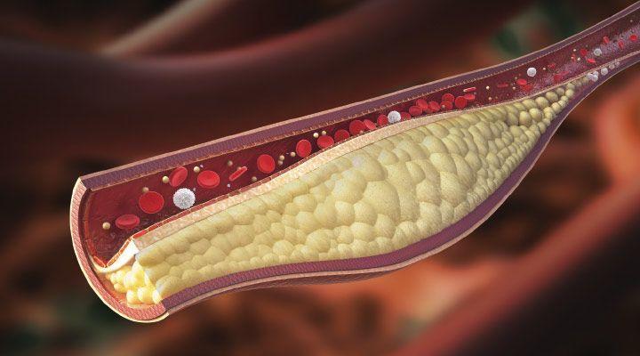 Hrsť orechov denne môže znížiť hladinu zlého cholesteroluo sedem percent,tvrdiavedciz kalifornskej univerzity Loma Linda. Obsahujú totiž vitamín E, kyselinu listovú, meďalebo horčík tedalátky, ktoré údajne dokážu minimalizovaťaj riziko srdečných chorôb. Orechy sú nielen chutné, ale aj zdravé… Brazílske (para) orechy acholesterol Testovaným dobrovoľníkom podali dávky