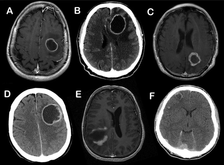 MAGIC DR - a handy mnemonic used to remember thepotentialcauses of acerebral ring enhancing lesion.    M -Metastasis  A -Abscess  G -Glioblastoma multiforme  I -Infarct (subacute phase)  C -Contusion  D -Demyelinating disease(eg. tumefactive MS)  R -Radiation necrosis    Although you can't possibly know by looking at the single images, for what it is worth, the above cases are; A = metastasis, B = abscess, C = radiation necrosis, D = GBM, E = demyelination, F = contusion.