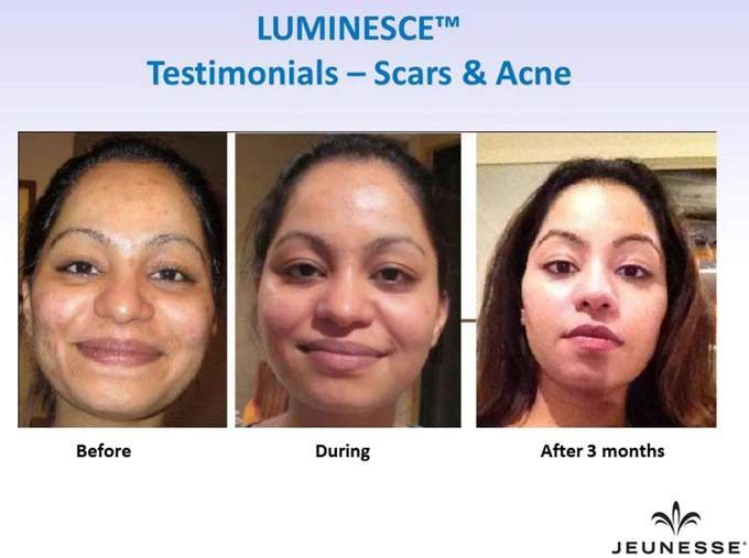 jeunesse before after photos | jeunesse, jeunesse opportunity, Jeunesse® Global, LUMINESCE, cellular ...