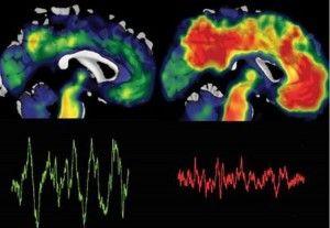 Berkeley, Kaliforniya Üniversitesi'den bilim insanları, yetersiz uykunun-uykusuzluğun, beynin uzun süreli hafızasını bozan Alzheimer hastalığını tetiklediğine ...