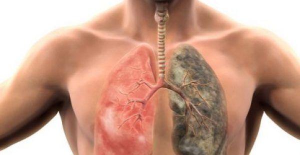 Κάπνισμα: Πώς να φτιάξετε το ελιξίριο καθαρισμού των πνευμόνων σας