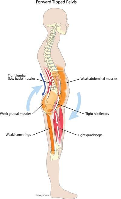 Forward Tipped Pelvis Muscle Imbalance.  By far the most common postural dysfunction we see, a forward tipped pelvis is extremely common among office workers, truck drivers and others who spend a large portion of each day sitting.  A forward tipped pelvis is also the most common cause of lower back muscle pain. Tight muscles: Lumbar Hip flexors Quadriceps Weak muscles: Abdominal Gluteal Hamstrings