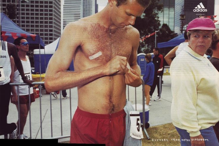 Love the old Adidas advertisement in this post on 'Jogger's Nipple'!   Nipple chafing while running, or Jogger's nipple, is a painful and common ultramarathon running injury. See my tips on nipple chafing treatment & prevention.  #running #trailrunning #ultramarathon #runninginjuries