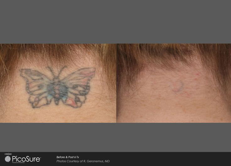 PicoSure butterfly Tattoo Removal | Ogden, UT TimeLess Medical Spa